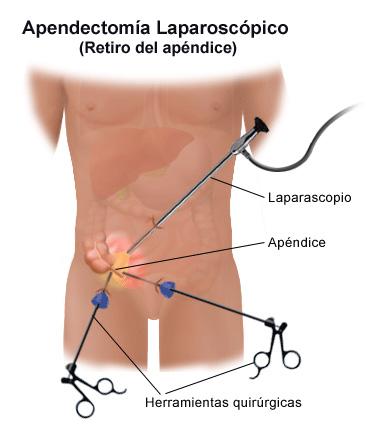 apendice-2