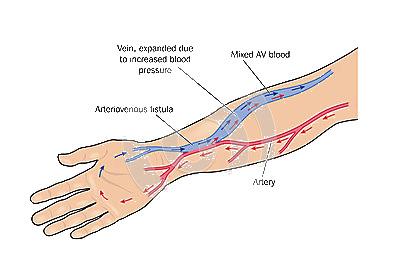fistula-arterio-1