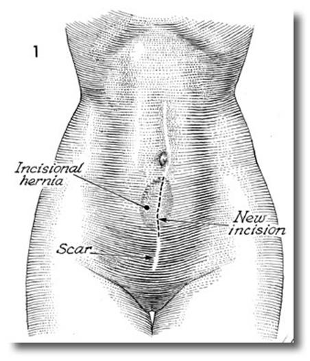 hernias-1