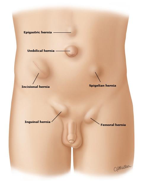 hernias-2
