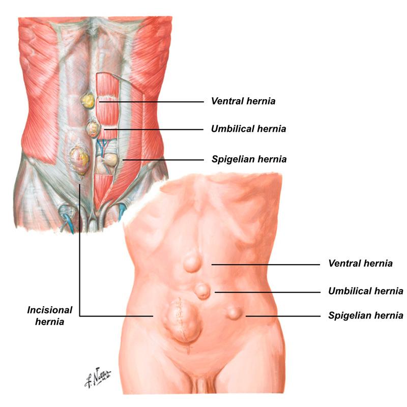 hernias-3
