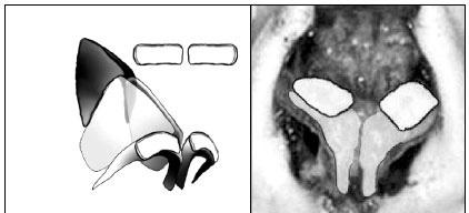 rinoseptoplastia-2