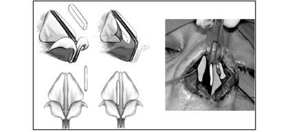rinoseptoplastia-4