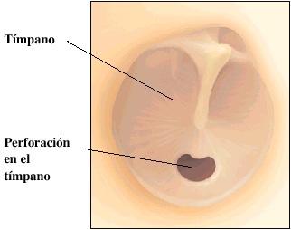 timpanoplastia-2