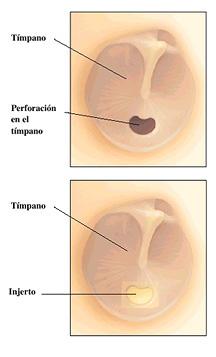 timpanoplastia-3