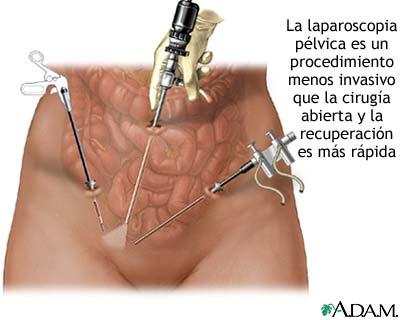 utero-ovario-2