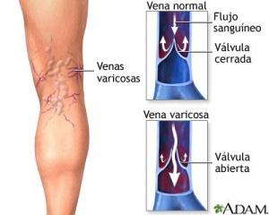 varices-ulceras-1