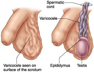 varicocele-1