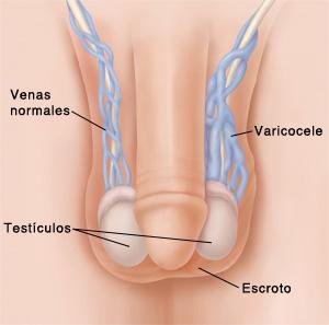 varicocele-2