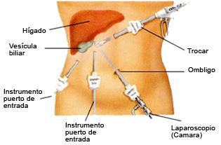 vesicual-vias-2