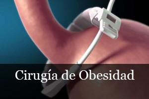 Cirugía de Obesidad